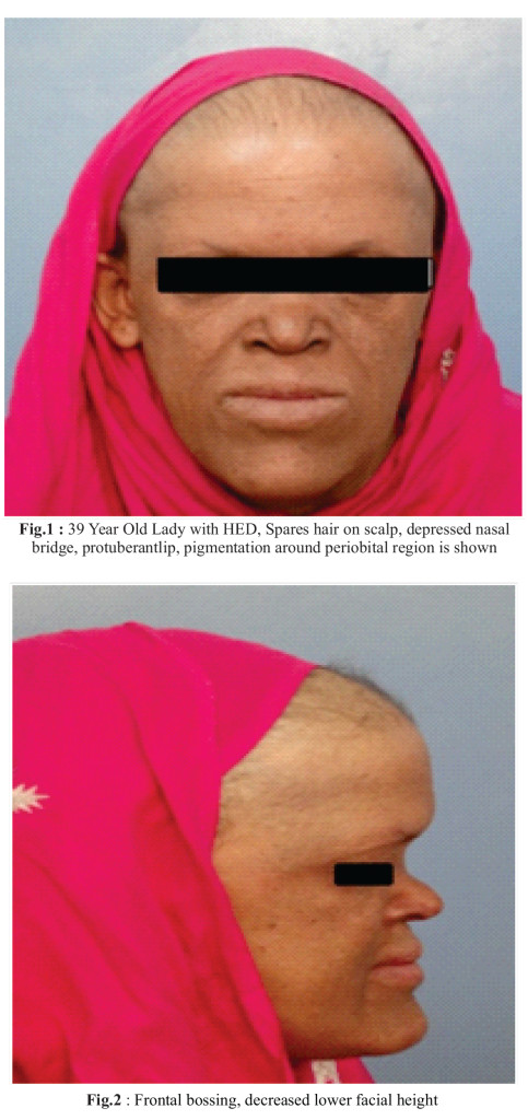 Hypohidrotic Ectodermal Dysplasia: A Case Report | Journal